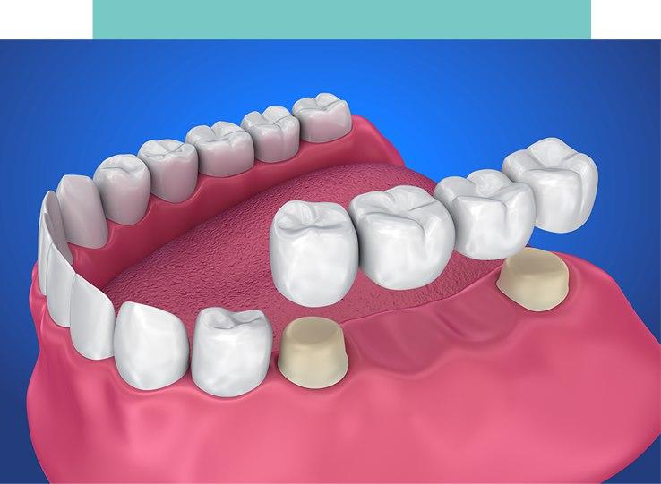 Crowns and Bridges Cherrybrook Beyond 32 Dental