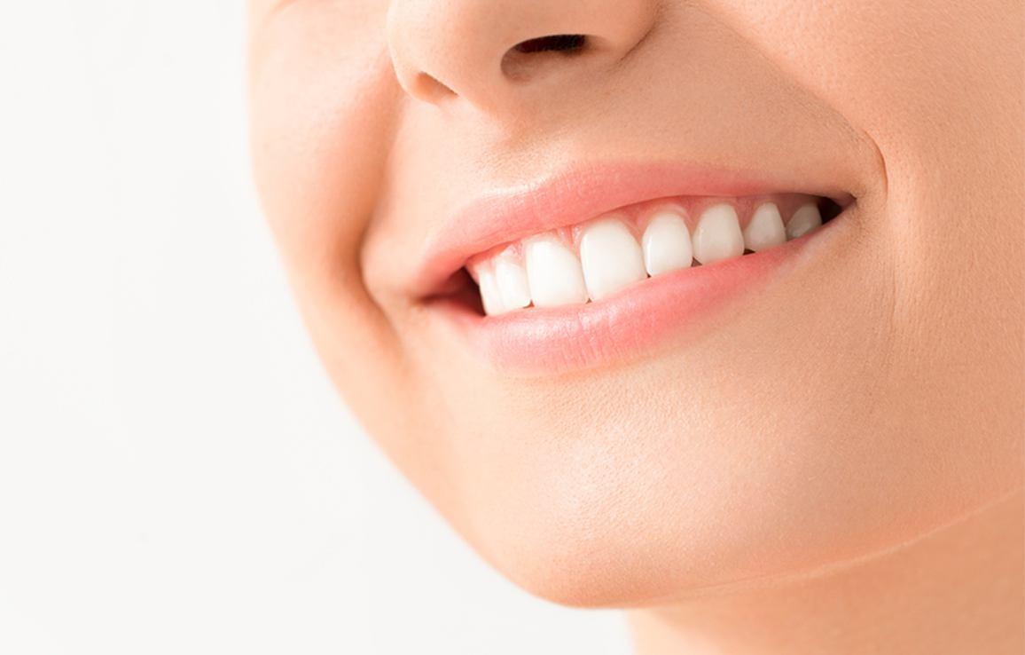 Fixing my Smile Beyond 32 DEntal