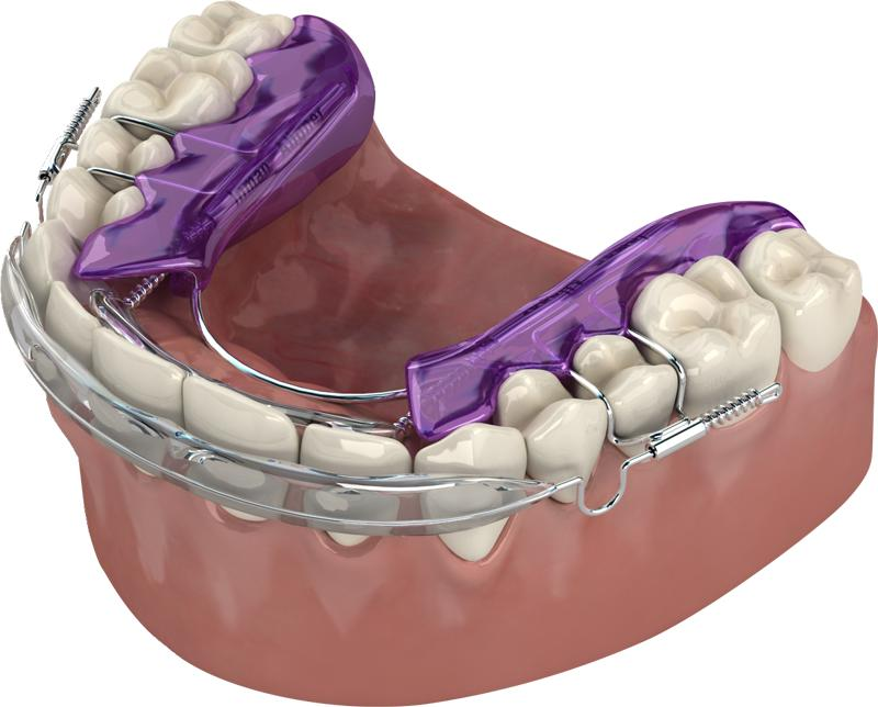 Inman Aligner Cherrybrook Beyond 32 Dental