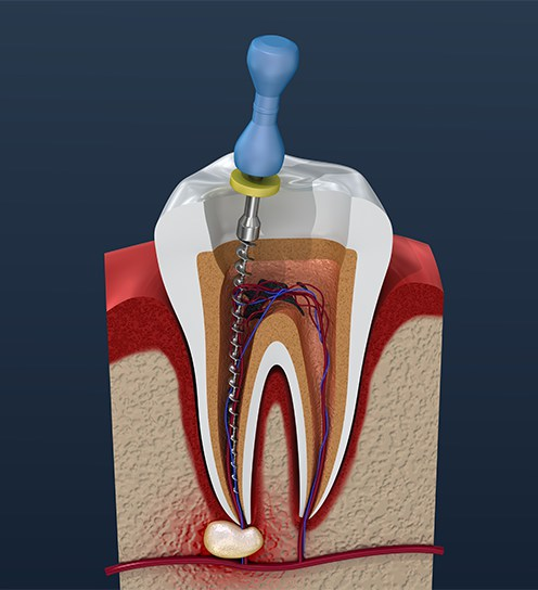 Root Canal Therapy Beyond 32 Dental